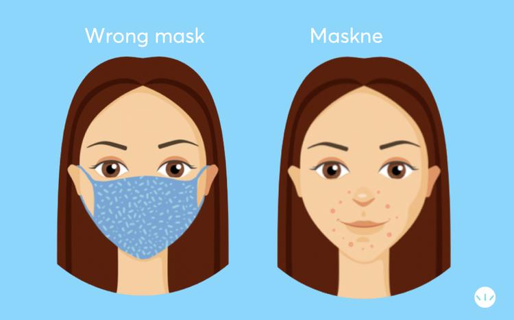 MaskAcne